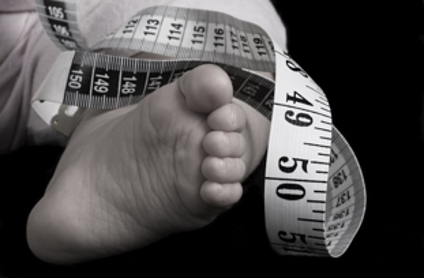 Infantile Strabismus resized 600