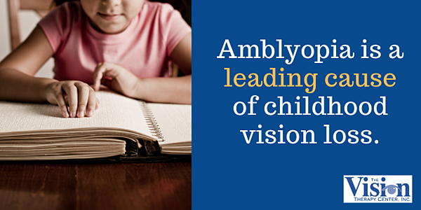 Amblyopia is a leading cause of childhood vision loss.