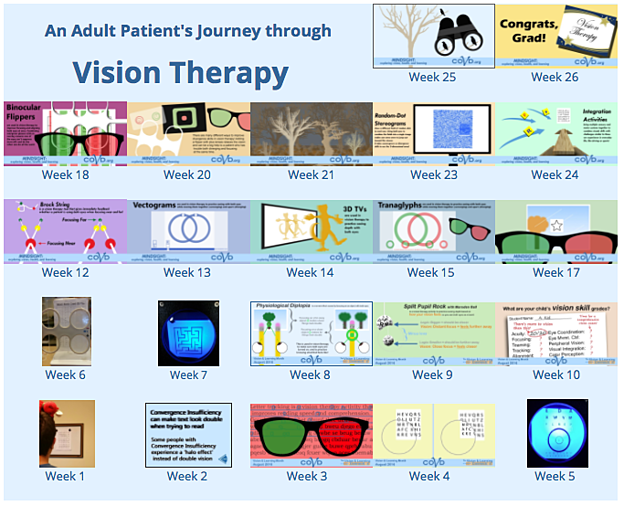 Adult's Journey Through Vision Therapy