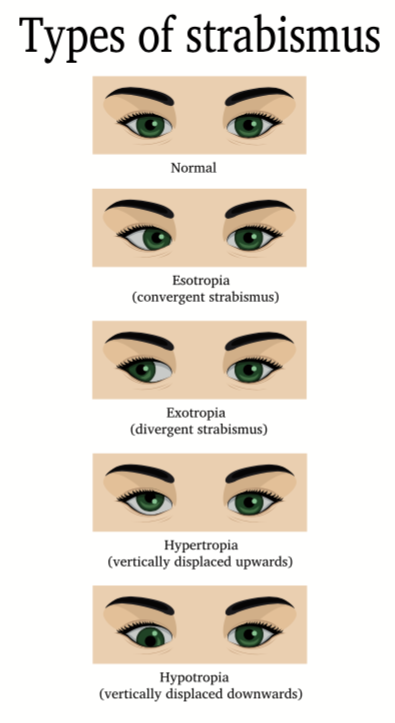 Types of Strabismus