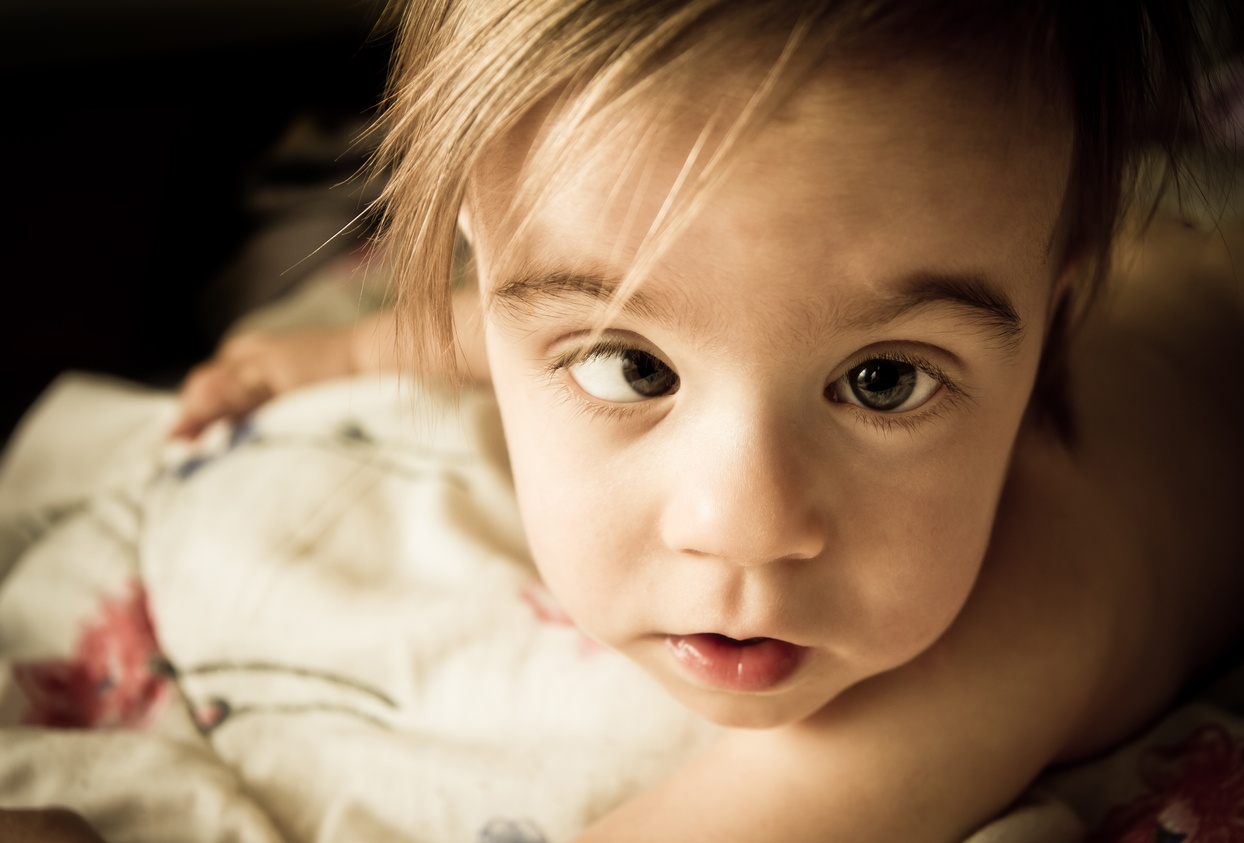 Strabismus in children