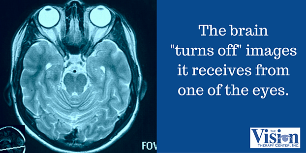 "The brain ""turns off"" images it receives from one of the eys."
