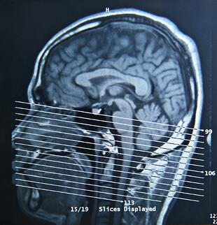 Vision therapy can help patients overcome their concussion symptoms